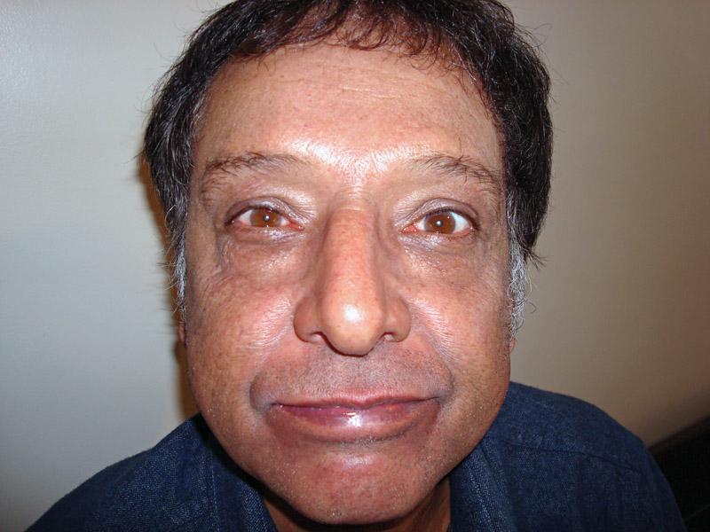 10. Arnaldo Baptista (músico)