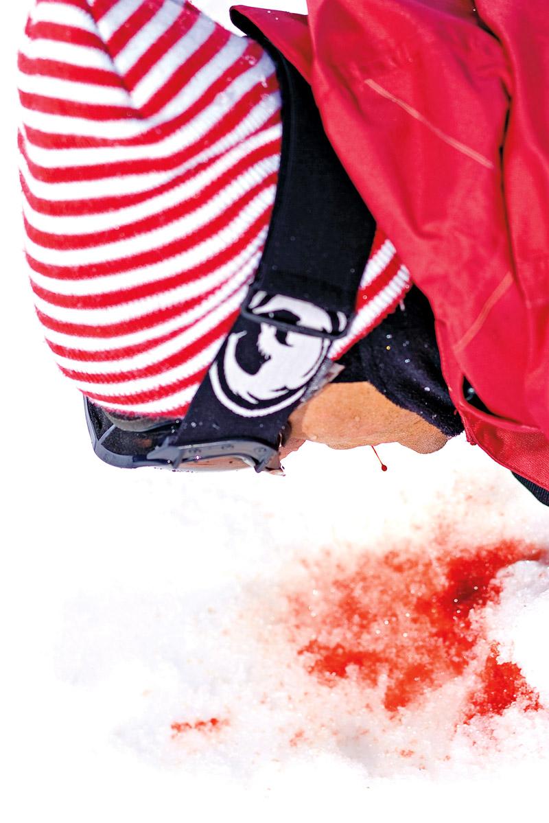 Gerome Mathieu dá o sangue na Suécia