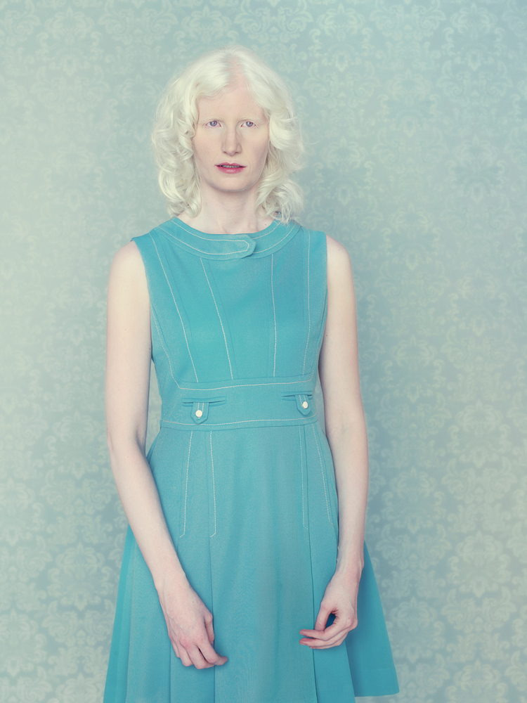Andreza Cavalli, do grupo Albinos do meu Brasil