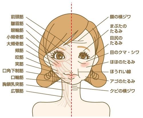 Com o Face Slimmer (à esquerda), sem o Face Slimmer (à direita)