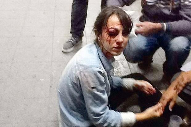 Junho de 2013: Giuliana Vallone é atingida por uma bala de borracha durante manifestação na rua Augusta