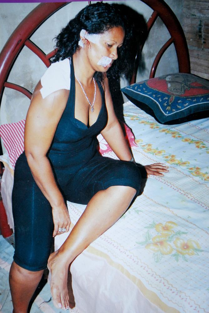 Antonia Leonice Jacxes em 2009, após levar nove golpes de facão do ex-marido
