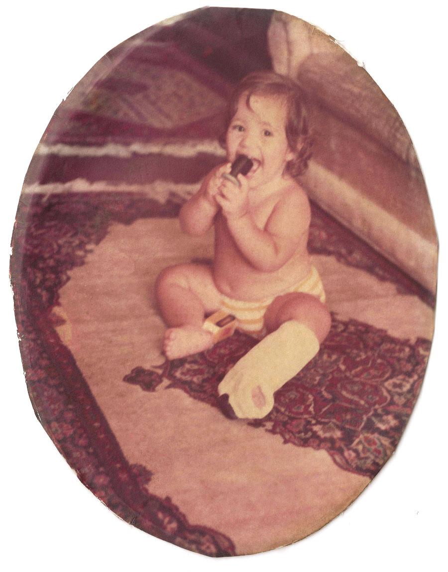 Joana com 1 ano de idade e a perna quebrada