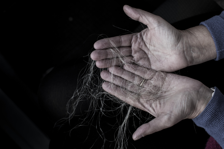 Assim como já era esperado, logo após a primeira sessão de quimioterapia os cabelos de Martha começaram a cair