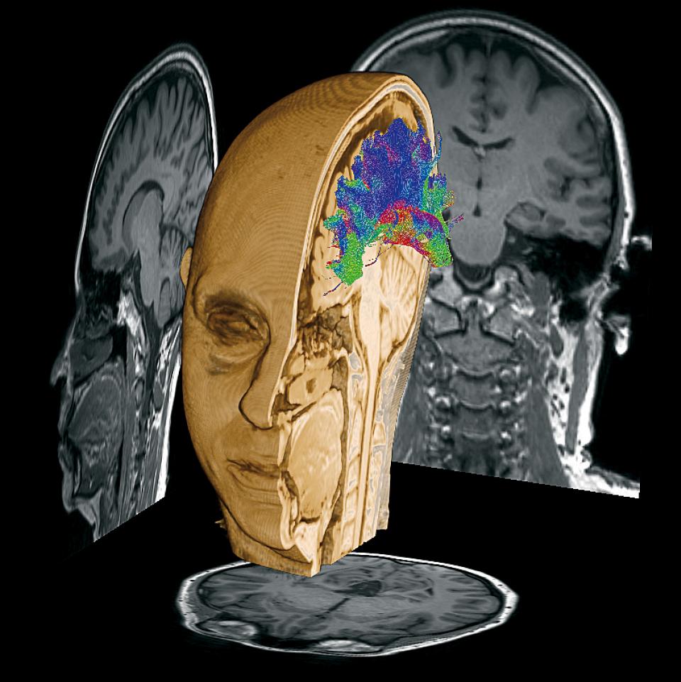 Ressonância magnética do mapa de conectividade estrutural cerebral de Fernanda